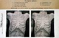 The Edinburgh steroscopic atlas of anatomy Wellcome L0029685.jpg