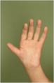 Thumb hypoplasia type 2.png