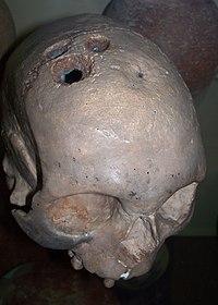 Trepanated skull, Bronze Age.JPG