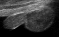 Ultrasound Scan ND 0107111200 1116060 cr.png