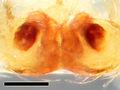 Zygoballus electus allotype epigyne ventral with scale.jpg