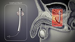 3D lékařská animace stále střílí z uretrálního stentu