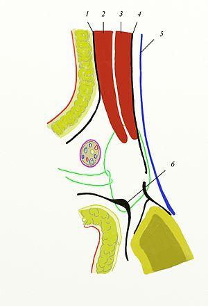 Inguinal hernia surgery - Bassini technique, first suture. 1. Aponeurosis musculi obliq. ext.; 2. Musculus obliquus internus; 3. Musculus transversalis; 4. Fascia transversalis; 5. Peritoneum; 6. Ligamentum inguinale.