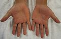 Characteristic rash of hand, foot, and mouth disease, on two humans hands.jpg