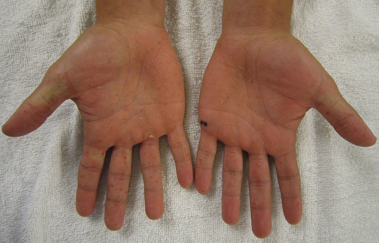 File Characteristic Rash Of Hand  Foot  And Mouth Disease