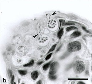 Batrachochytrium dendrobatidis - B. dendrobatidis sporangia in the skin of an Atelopus varius. The arrows indicate discharge tubes through which zoospores exit the host cell. Scale bar = 35 µm.