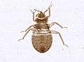 Cimex lectularius (YPM IZ 093687).jpeg