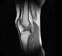 MRT-billede på et knæ