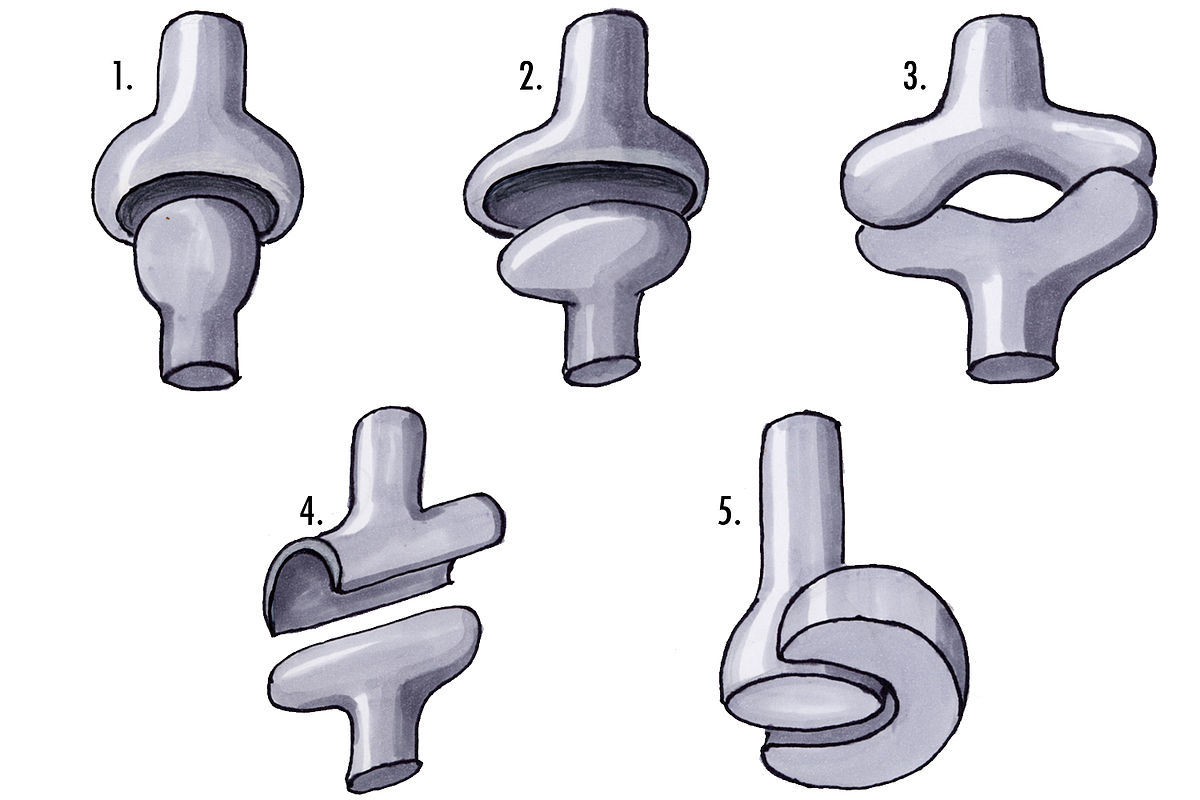 Hinge joint - Wikipedia