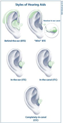 Hearing aid - Wikipedia, the free encyclopedia
