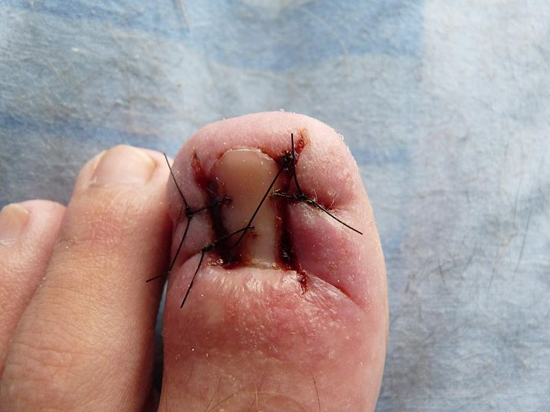Infected Stitches: Pictures, Symptoms, Causes, and Treatment