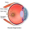 Macular Degeneration.png