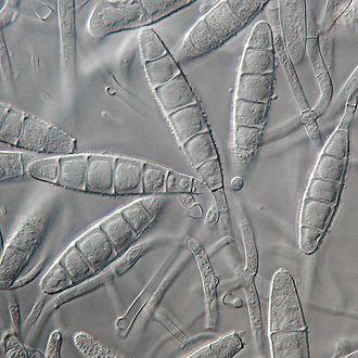 Microsporum gypseum - Image: Microsporum gypseum 003