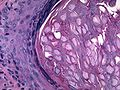 Molluscum conatgiosum, vulva, 40X 2.jpg
