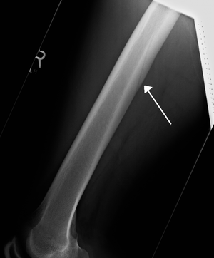 Nutrient artery - A nutrient artery feeding the femur seen on X-ray
