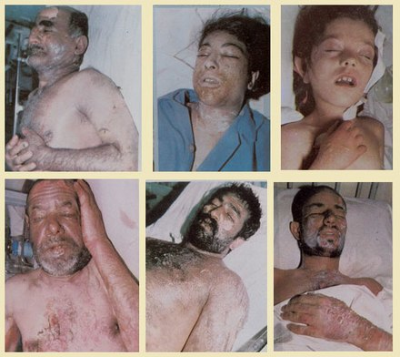 Victims of the 1987 chemical attack on Sardasht, West Azerbaijan, Iran Sardashtchemic.jpg