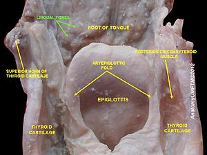 Lingual tonsils - Image: Slide 1sss