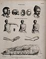 Surgery; patients with fractured clavicles and bandaged clav Wellcome V0016357.jpg