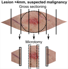 Tissue selection from skin excision with less than 4 mm suspected malignant lesion.png