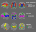 White matter tracts anatomical subset.png