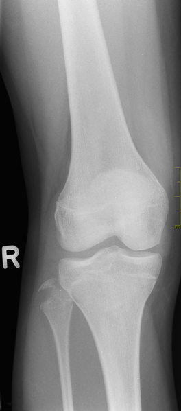 File:X-Ray of the knee.png