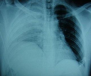 Diaphragmatic rupture crack of the diaphragm