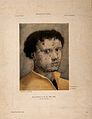 A young man with an ulcerated face. Lithograph after H. Holbein Wellcome V0010540.jpg
