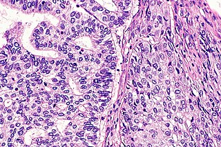 Adenosquamous carcinoma squamous cell carcinoma that contains squamous cells and gland-like cells