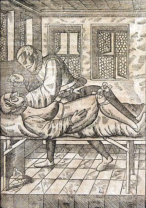 Georg Bartisch - Surgeon at work (1583)