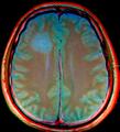 Brain MRI 131749 rgbcb-ce.png
