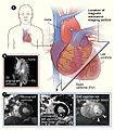 Cardiac Mri.jpg