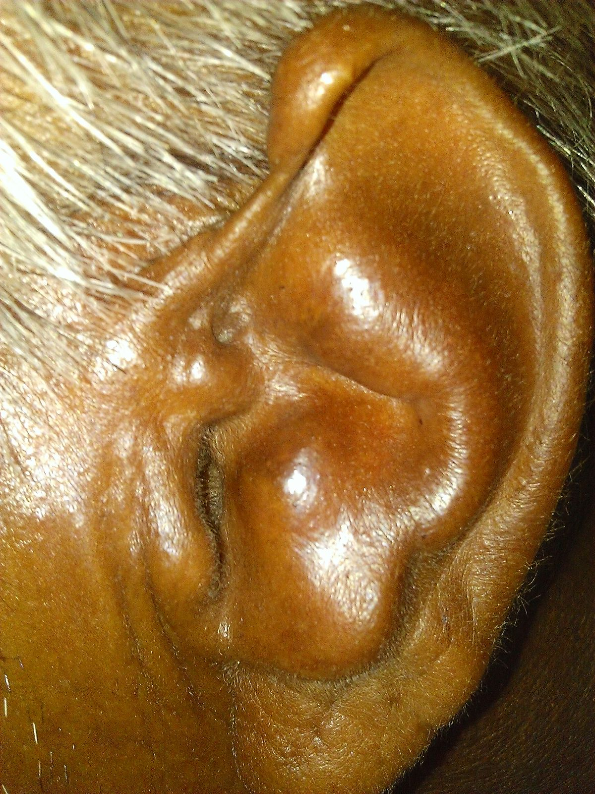 cauliflower ear wikipedia