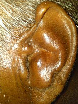 Cauliflower ear by dr vikram yadav.jpg