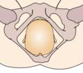 Cephalic presentation - straight occipito-posterior.png
