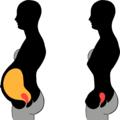 Comparison pregnant extremeStemWaistedCorset.png