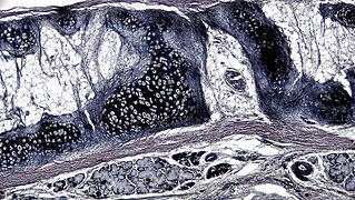 Elastic cartilage