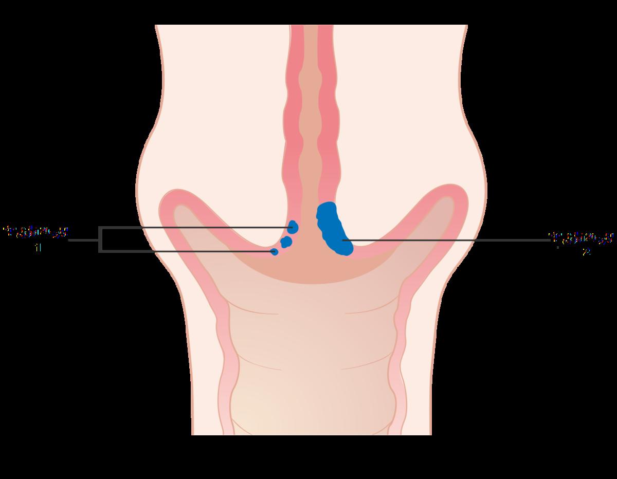 تصنيف مراحل سرطان عنق الرحم ويكيبيديا