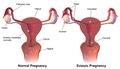 Ectopic Pregnancy.png