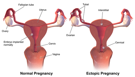 After An Ectopic Pregnancy
