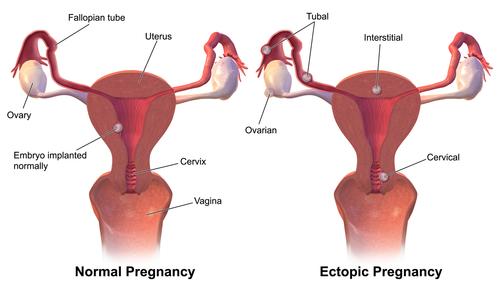symptomer på svangerskap utenfor livmoren