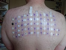 five by seven patch test on medical subjects upper back