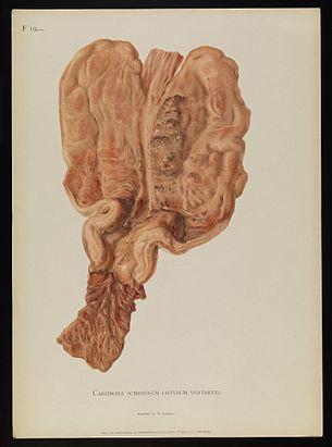F19. Carcinoma scirrhosum diffusum ventriculi. Alfred Kast Wellcome L0074358