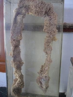 Adenomatous polyposis coli - Familial Adenomatous Polyposis of the intestine