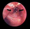 Lung cancer in L. Bronchus - bronchoscopic view.png