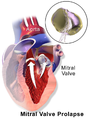 Mitral Valve Prolapse.png