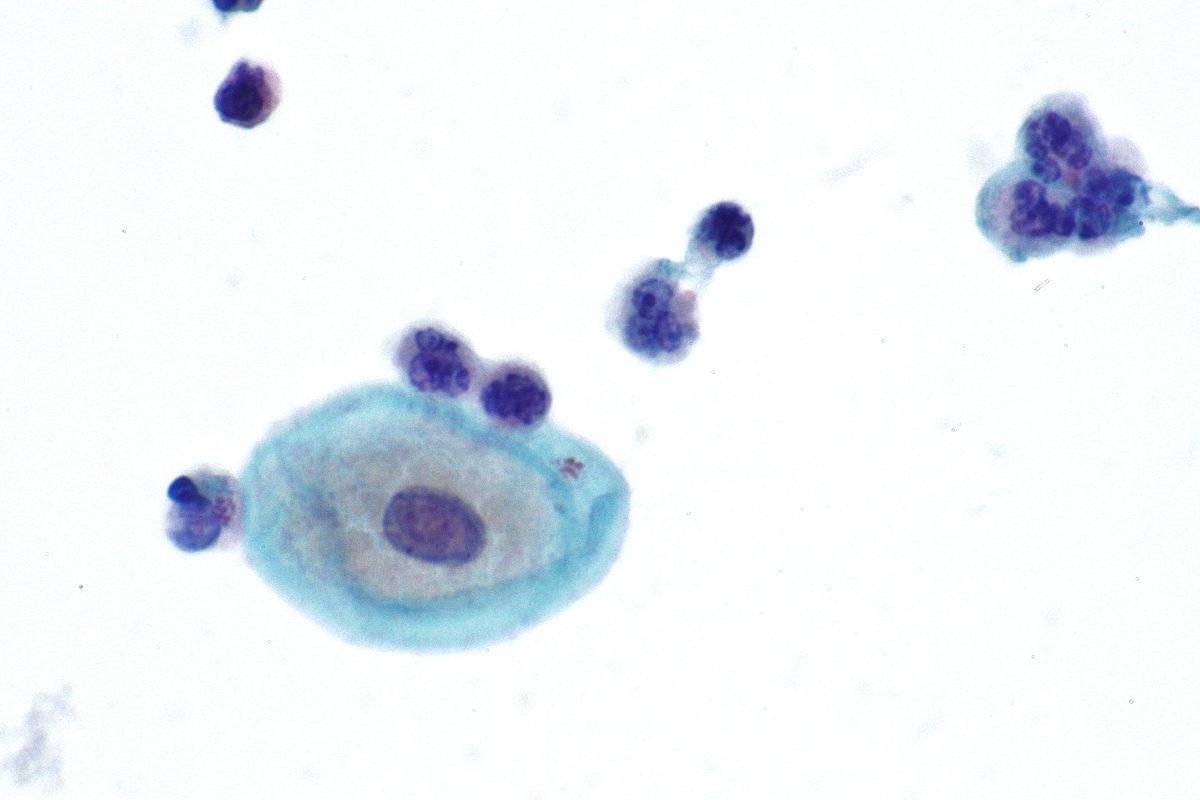 Navicular cell