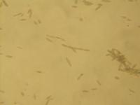 Oidium (Microsphaera) spores 160X.png