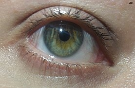 Eye with central heterochromia (green and brown)