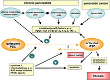 Pancreatic stellate cell activation in chronic pancreatitis and pancreatic cancer.jpg