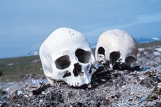Forensic anthropology Application of the science of anthropology in a legal setting